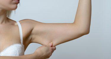 Как подтянуть кожу рук в домашних условиях